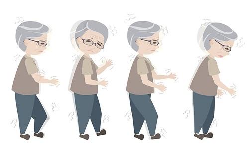 Các triệu chứng thường gặp của bệnh Parkinson