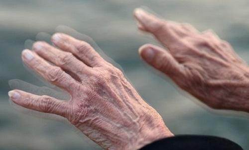 Ở giai đoạn cuối của Parkinson phải điều trị bằng phẫu thuật