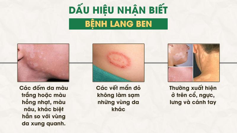 Dấu hiệu bệnh lang ben dễ quan sát