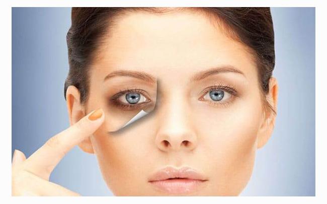 Góc làm đẹp: 3 cách chữa bệnh thâm quầng mắt