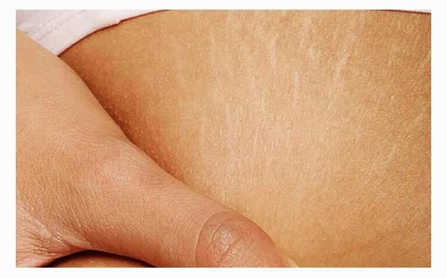 Bật mí: 4 cách làm mờ vết rạn da lâu năm đơn giản tại nhà