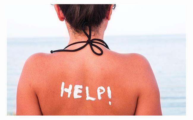 Bật mí: 8 cách trị da bị cháy nắng hiệu quả siêu tốc