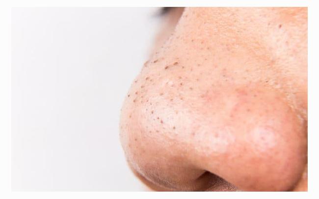 4 cách trị mụn đầu đen ở mũi tận gốc hiệu quả nhất tại nhà