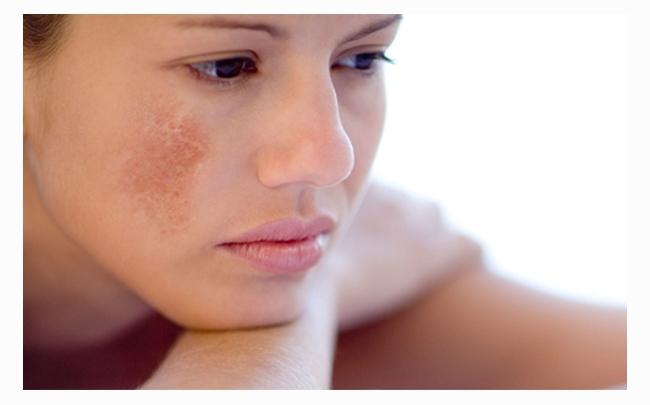 Mẹo làm đẹp: 4 cách trị nám da mặt bằng phương pháp dân gian hiệu quả