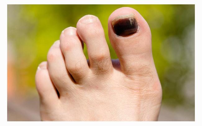 Cẩm nang sức khỏe: Móng chân bị đen là bệnh gì?