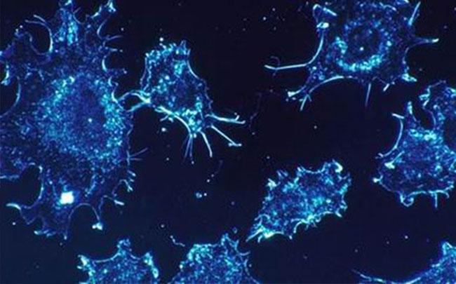 Phát hiện nguyên nhân gây bệnh ung thư?