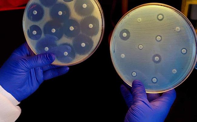 Trí tuệ nhân tạo đã giúp tìm ra Halicin, một loại thuốc kháng sinh mạnh nhất