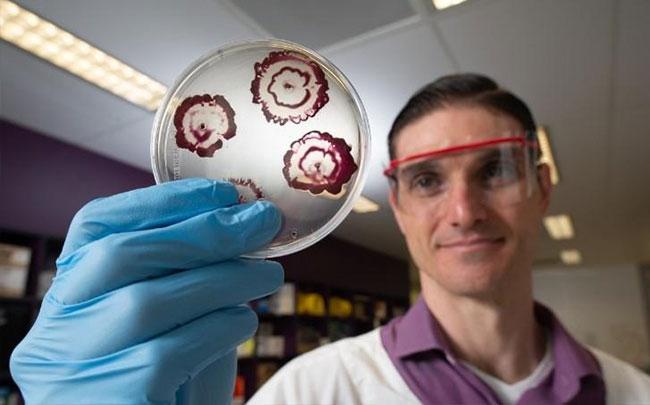 Úc kết hợp 2 loại thuốc sẵn có thành công cụ xuyên thủng màng sinh học của vi khuẩn