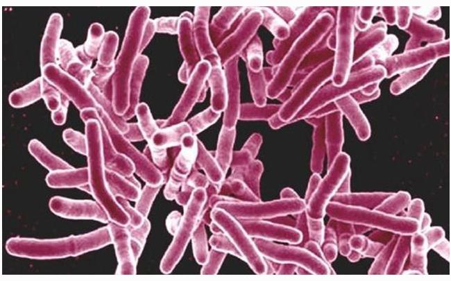 Vật liệu cấy ghép có khả năng tiêu diệt tới 98% vi khuẩn