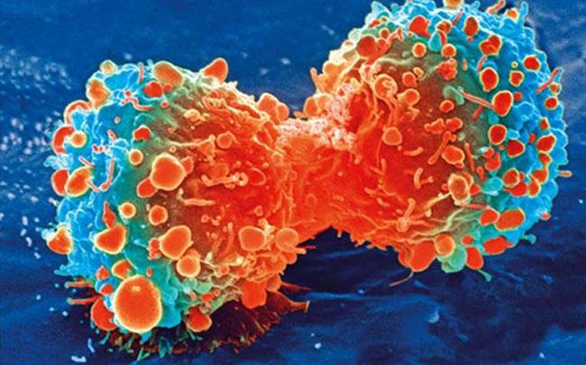 Xác định được nguyên nhân chính gây bệnh ung thư